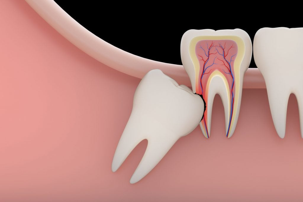 An illustration of a wisdom tooth erupting at an angle.